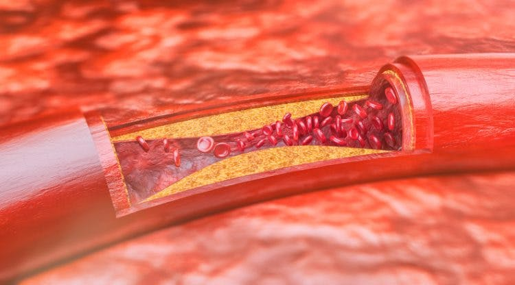 Atherosclerosis and Stroke: How Excess Plaque May Cause Stroke