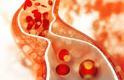 link between atherosclerosis and stroke