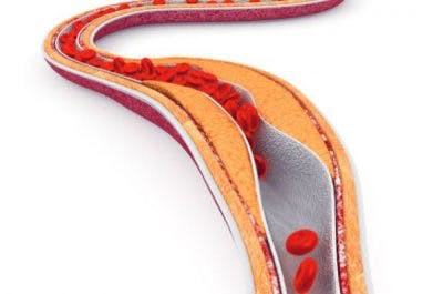 atherosclerosis and stroke risks