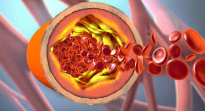 high cholesterol and stroke risk