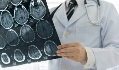 how does stem cell therapy for stroke work