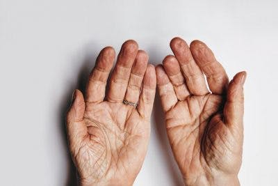 relaxed hands that have been rehabilitated after stroke