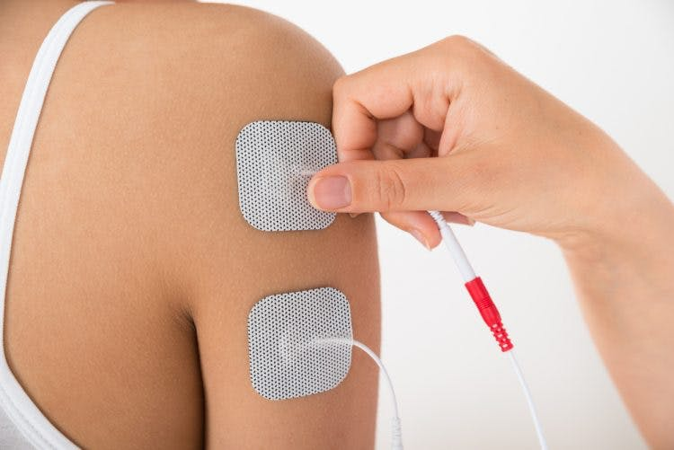 Electrical Stimulation For Stroke Recovery How It Works