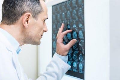 Doctor mirando el escáner cerebral durante la rehabilitación acv