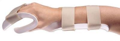 hand splint for stroke patients