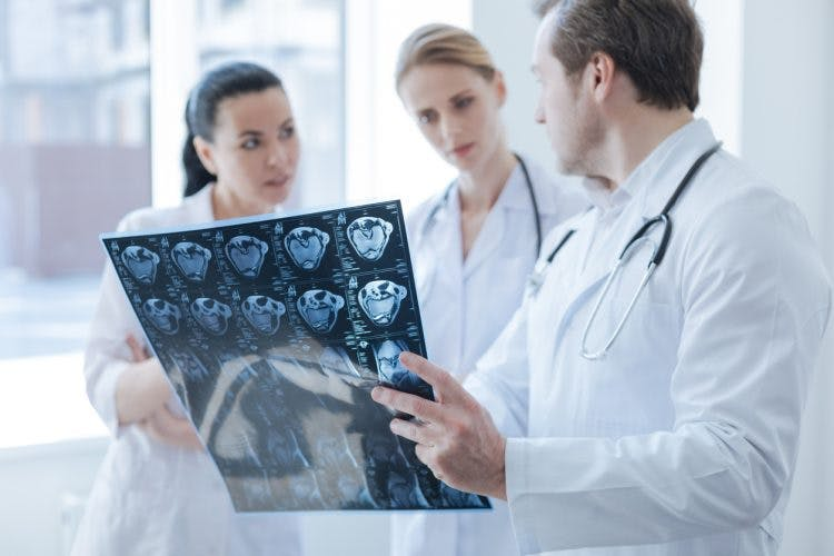 doctors discussing thalamic stroke syndromes