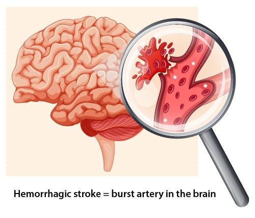 high cholesterol reduces risk of hemorrhagic stroke