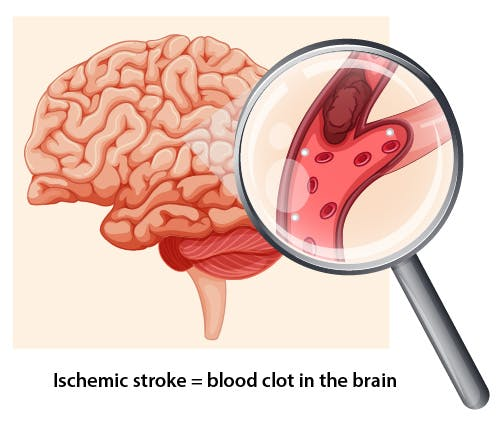 ischemic stroke caused by atherosclerosis and excess plaque