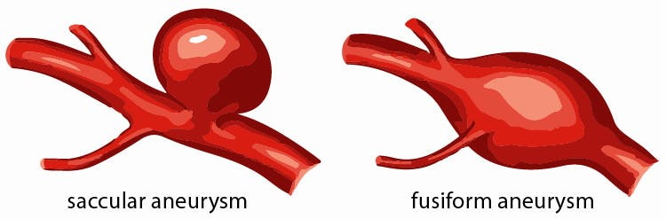 stroke and aneurysm