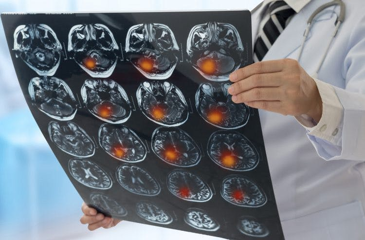 types of stroke and symptoms