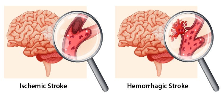 ischemic and hemorrhagic stroke treatment