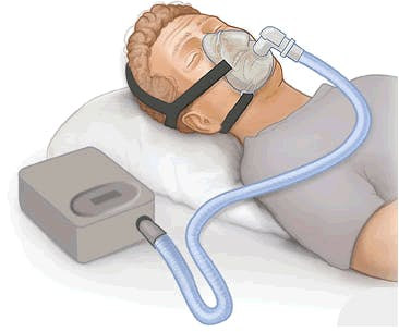 you might need to use sleep assisting devices like a CPAP if you suffer from sleep apnea after spinal cord injury