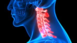 understanding cervical spinal cord injury