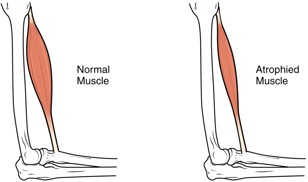 muscle atrophy due to spinal cord injury