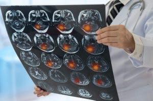 neurólogo con escáner cerebral que muestra diferentes tipos de acv