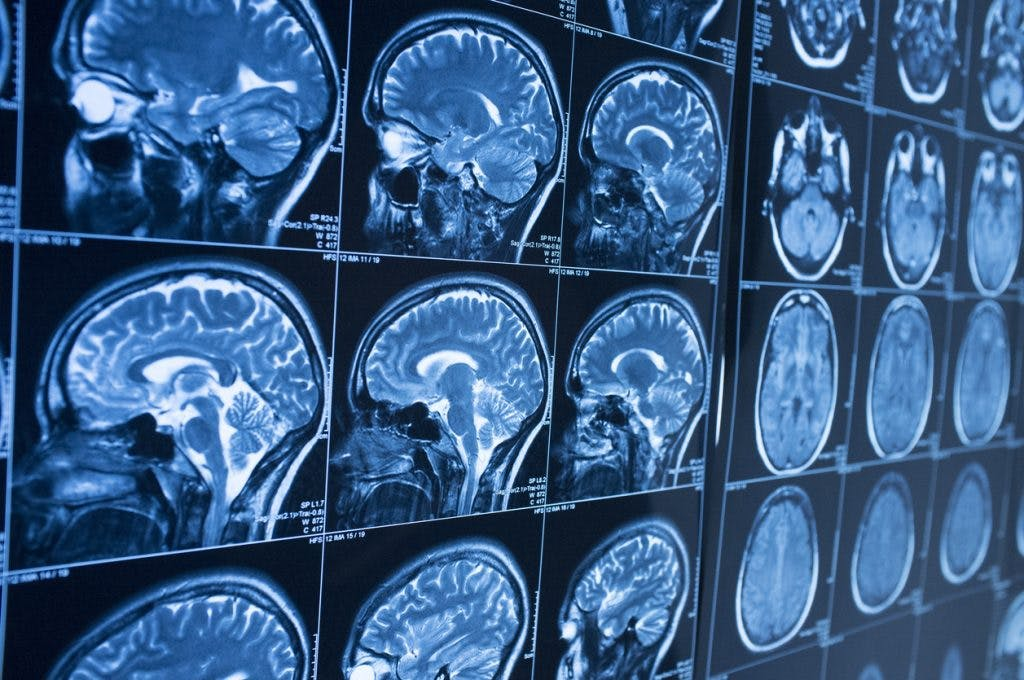 brain injury diagnostic tests with MRI and CT scan