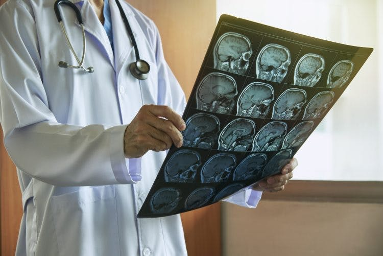 neurologist with brain scans discussing what to expect after a stroke