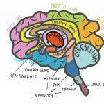 everything you need to know about thalamic stroke recovery