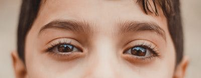 visual impairments and cerebral palsy communication difficulties