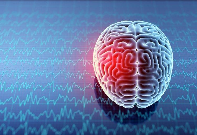 Frontal lobe seizure illustration