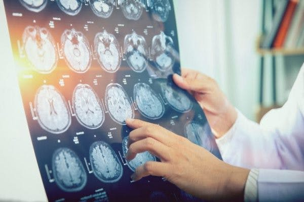neurologist holding brain scan and pointing to bilateral stroke signs