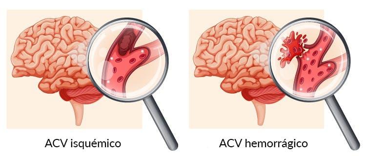 illustration of types of brain stem stroke