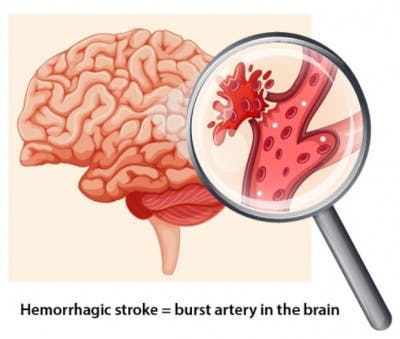 illustration of ruptured artery in brain where aspiring for emergency stroke treatment should not be used