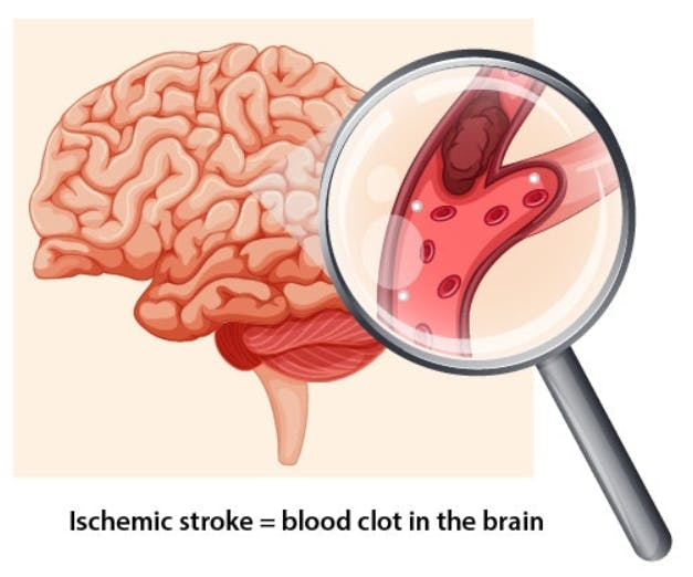 illustration of blood clot in brain that needs emergency stroke treatment