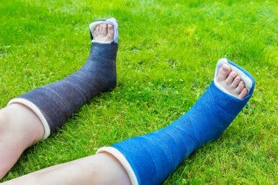 serial casting orthosis for spinal cord injury