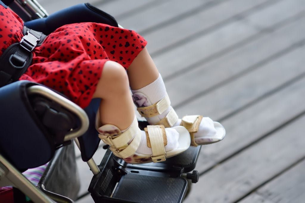 child with cerebral palsy using ankle foot orthosis to manage spasticity