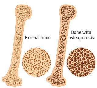 osteoporosis vs normal bone mineral density