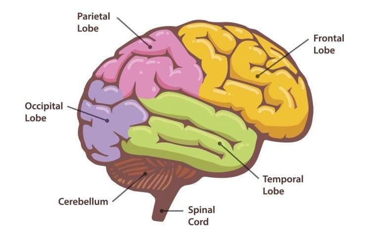 what is parietal lobe stroke