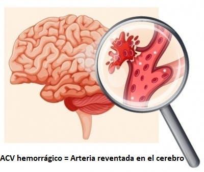 Arteria reventada en el cerebro