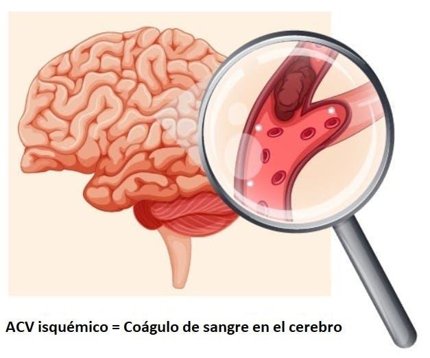 coágulo de sangre en el cerebro