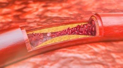 Arteria obstruida por acumulación de placa
