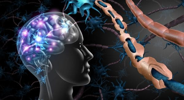 cerebral palsy and multiple sclerosis comparison