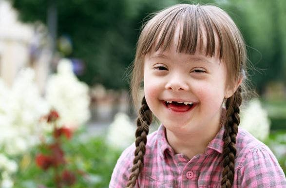 physical effects of cerebral palsy vs down syndrome