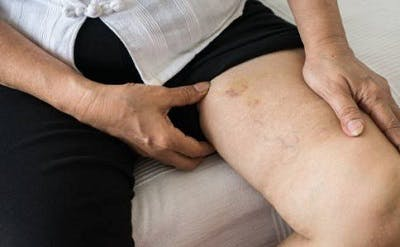 leg pain after spinal cord injury caused by blood clotting