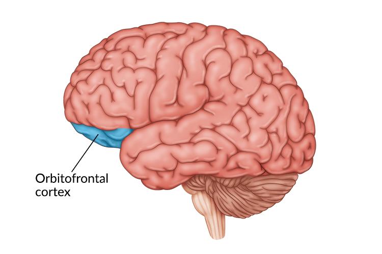 medical illustration of brain highlighting orbitofrontal cortex damage