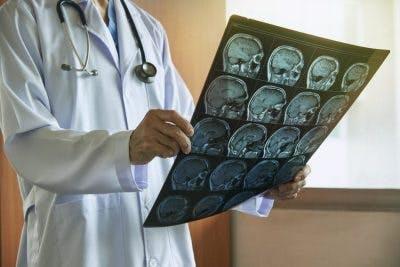 ubicación de accidente cerebrovascular