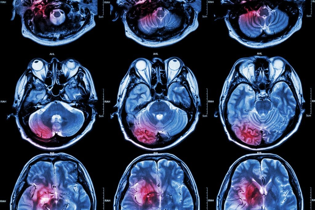 MRI of stroke on brain caused by coronavirus
