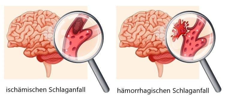 Illustration von ischämischem vs hämorrhagischem Schlaganfall auf der rechten Seite des Gehirns