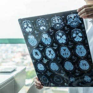 Doctor sitting in office looking at MRI scans showing focal brain injuries