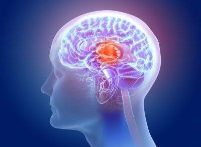 basal ganglia kernicterus cerebral palsy