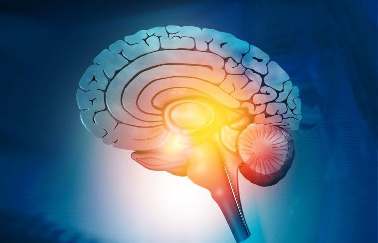 3-d image of right hemisphere of to represent a corpus callosum injury