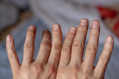 two hands, left hand's fingers are bending oddly because of alien hand syndrome