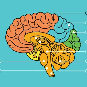 colorful illustration of brain anatomy highlighting a frontal lobe stroke