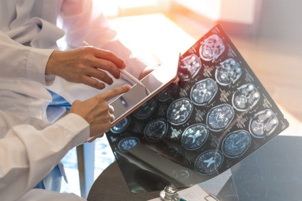 Doctors looking at brain scan showing damage to amygdala