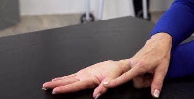 Ergotherapeut mit Handfläche auf dem Tisch für die Handtherapie
