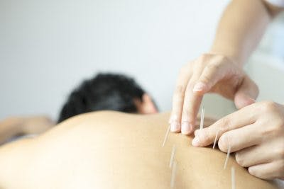 acupuncturist treating stroke patient with vomiting and nausea